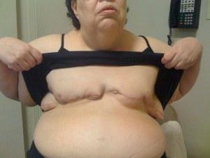 double mastectomy